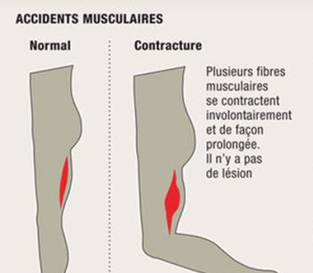 comment soigner une contracture musculaire à Lyon Bourgoin Jallieu et Annecy