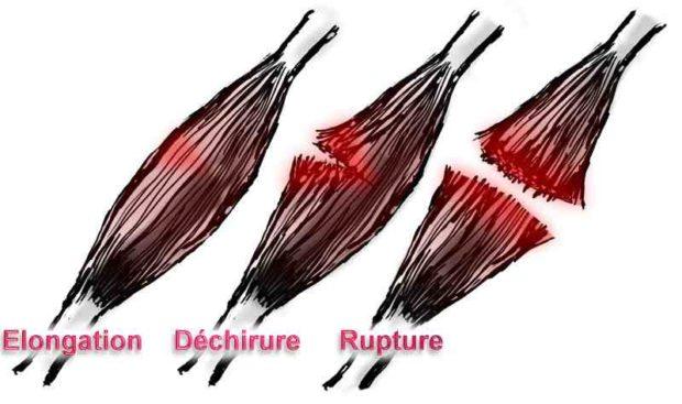 Schéma des differentes lésions musculaires